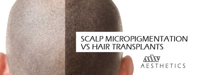 scalp micropigmenation vs hair transplants