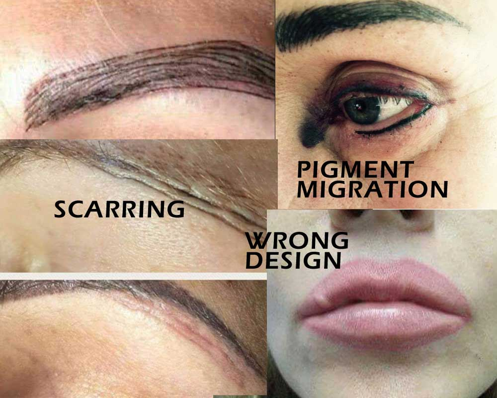 when permanent makeup goes wrong