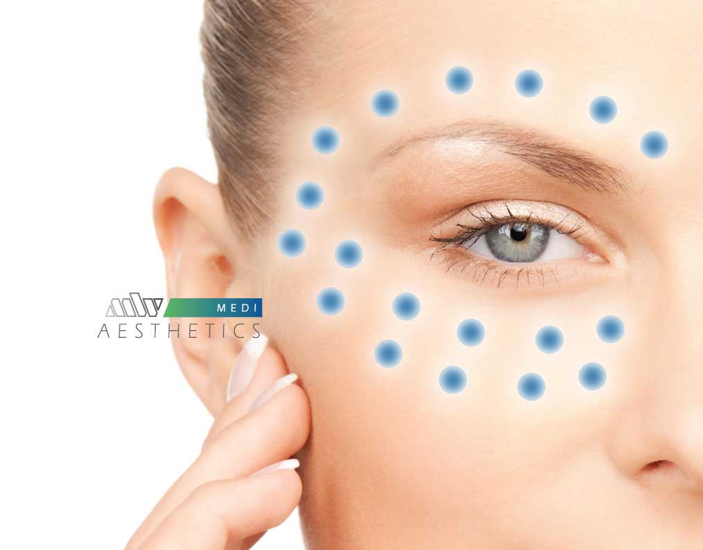 mesotherapy eye rejuvenation