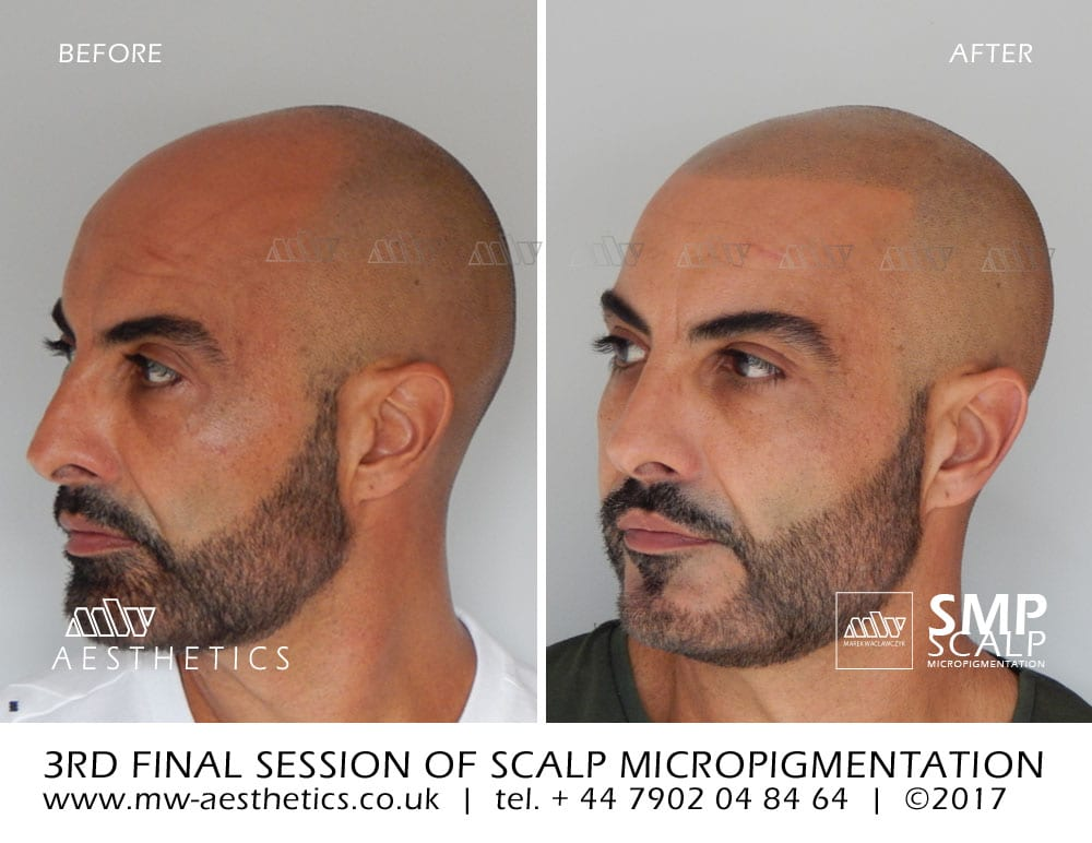 scalp micropigmentation results