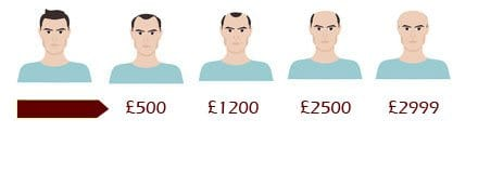 scalp micropigmentation prices